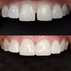 Another day another life long space closed with the Bioclear Method and some cosmetic reshaping. Dental, Smile, Cosmetics, Teeth, Dentist Clinic, Tooth, Dental Health, Laughing