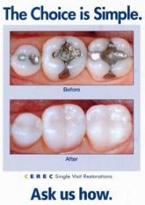 If you're self-conscious about your #smile due to #cracked, #broken, decayed or worn #teeth, you may be a great candidate for #beautiful #porcelain, #tooth #colored #CEREC #crowns, completed in just One Visit!  No #Impressions! No #Temporaries! No Second #Appointment! Get the #smile you've always wanted …in as little as One Appointment! Call us at 972-231-0585.