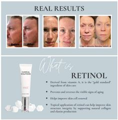Selling Mary Kay, Skin Structure, Beauty Consultant, Pink Parties, Uneven Skin Tone, Beauty News, Clinic, Skin Care, Pure Products
