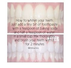 After braces ! which btw is this Monday ! DIY, After braces ! which btw is this Monday ! Source by Beauty Hacks Eyelashes, Beauty Hacks Lips, Beauty Hacks Skincare, Beauty Tips, Diy Beauty, Teeth Whitening Remedies, Natural Teeth Whitening, Teeth After Braces, Wisdom Teeth Funny