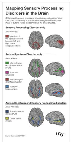 Kids with Autism, Sensory Processing Disorders Show Brain Wiring Differences -- UCSF study builds on its groundbreaking research showing children with SPD have measurable brain differences Aspergers Autism, Adhd And Autism, Children With Autism, Add Adhd, Autism Teens, Autism Apps, Autism Parenting, Sensory Diet, Sensory Issues