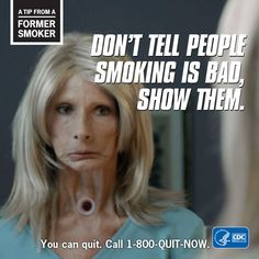 (I like her commercial) Tip from a Former Smoker – Don't tell people smoking is bad, show them. You can quit. Smoking Is Bad, Help Quit Smoking, People Smoking, Anti Smoking, Giving Up Smoking, Smoking Kills, Smoking Lungs, Smoking Weed, Nicotine Withdrawal Symptoms