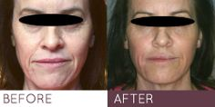 Juvederm liquid facelift http://www.outlineskincare.co.uk/clinic/treatments/8-point-lift-juvederm.html