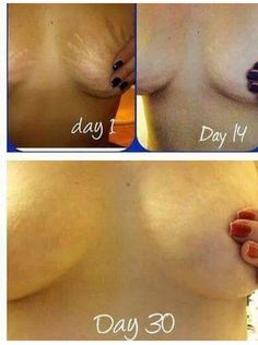 Amazing Results in only 30 days! Nerium firm delivers.  Learn more here: http://carolyncooper.nowsender.com/e/vd?2WDNPF