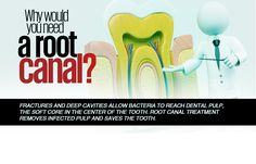 Root Canal Treatment, Best Dentist, Common Myths, Dental Services, Cavities, Dental Care, Dentistry, Pain Relief, Helpful Hints