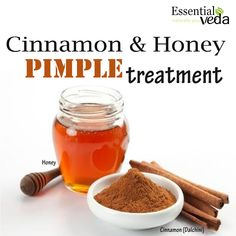 Mix 1 tbsp cinnamon powder and 3 tbsp honey and apply this on pimples. Leave this paste overnight or for 20 minutes before washing with warm water. Acne scars will dry out and skin will be rejuvenated.  Cinnamon helps de-clog pores and bring oxygen and blood to the surface while honey works for every kind of skin type – dry, oily, combination and is very moisturizing in nature. Use this remedy once a week. #essentialveda #pimple #treatment #natural #homeremedy #diy #getridofpimple