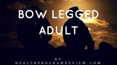 Wednesday, July 27, 2016BOW LEGGED ADULT Bow legged adult also generally recognized as Genu Varum or blindness is physical problems which end up in external bowing of the lower leg in regards to the upper leg. The illness makes a person's feet stay wide apart while standing with feet and legs together, with the overall …