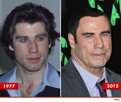 John Travolta: Good Genes or Hairblack? Bad Plastic Surgeries, Plastic Surgery Gone Wrong, Celebrities Before And After, Celebrities Then And Now, John Travolta, Celebrity Plastic Surgery, Divas, Good Genes, Stars Then And Now