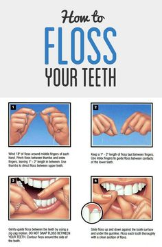 Learn how to floss your teeth with this easy 4 picture chart! Central Jersey Pediatric Dentistry  Orthodontics - www.kiddent.com  leave the cleaning to the professionals at Altima Dental :)