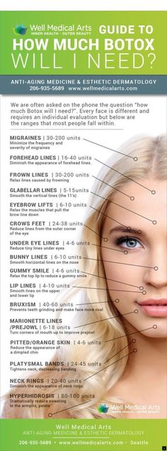 How much Botox will you need? This infographic will show you a range of units pe… How much Botox will you need? This infographic will show you a range of units per area. In Seattle call to schedule your consultation. Facial Fillers, Botox Fillers, Dermal Fillers, Botox Face, Botox Lips, Botox Injection Sites, Relleno Facial, Facial Anatomy, Botox Cosmetic
