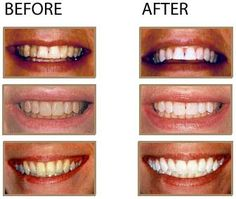 columbia professional teeth whitening http://dentistcolumbiasc89.soup.io/post/346644118/Best-Ideas-to-Selecting-A-Family-Dentist