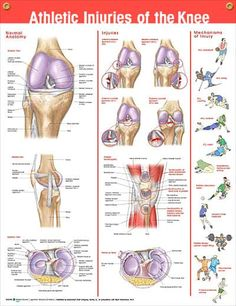 Athletic Knee Injuries anatomy poster provides overview of normal knee anatomy and common injuries, showcasing 11 images. Skeletal system  chartfor doctors and nurses. #clinicalposters