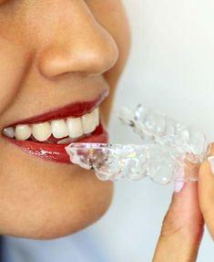 Curso Online de Ortodoncia Invisible – Clear Aligner