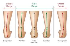 pod-med-pronation-diagram she article