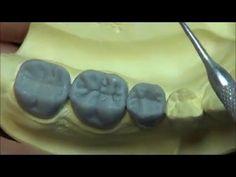 Live wax up - Lower Posterior bridge (contour1) - YouTube