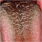 Hairy Black tongue is caused by bad oral hygiene, mouth breathing, tobacco, antibiotics or certain foods! Ewwww i can't believe this is true! Tongue Problems, Mouth Problems, Dental Health Month, Oral Health, Health And Wellness, Dental Humor, Dental Hygienist, Creepy, Black Tongue