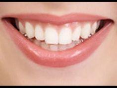 علاج تسوس الاسنان - تسوس الاسنان علاج تسوس الاسنان - تسوس الاسنان https://youtu.be/FLmq-2CWYK4   علاج تسوس الاسنان علاج تسوس الاسنان بالقران علاج تسوس الاسنان بدون طبيب علاج تسوس الاسنان الامامية علاج تسوس الاسنان بالثوم علاج تسوس الاسنان عند الاطفال علاج تسوس الاسنان بالليزر علاج تسوس الاسنان بالقران الكريم علاج تسوس الاسنان بالطب النبوي  تسوس الاسنان تسوس الاسنان الامامية علاج تسوس الاسنان بالاعشاب تسوس الاسنان عند الاطفال تسوس الاسنان بالانجليزي اسباب تسوس الاسنان رغم تنظيفها اعراض تسوس…