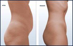 abdomen-plano-y-sano.jpg 900×566 pixels
