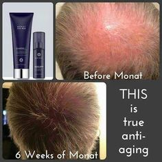 This really works! Get the Men's Hair Care system and some Rejuvenique. You'll love the results! I'm using it myself!