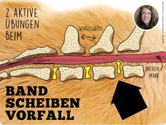 Zwei aktive Übungen beim Bandscheibenvorfall - Dognet.de