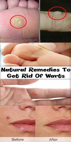9 best How to remove warts    images in 2018 | Beauty, Home Remedies
