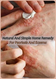 Natural And Simple Home Remedy For Psoriasis And Eczema Home Remedies For Psoriasis, Eczema Remedies, Hair Loss Remedies, Natural Remedies, Benefits Of Basil, Sprout Recipes, Good Smoothies, Coconut Oil For Skin