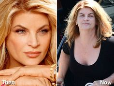 17 Celebrities Who Are Aging Terribly