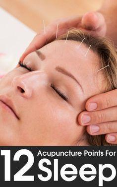12 Acupuncture Points For Sleep #acupuncturebenefits #AcupunctureforMigraines