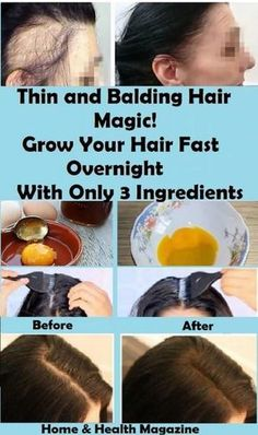 Hair Remedies Thin and Balding Hair Magic! Grow Your Hair Fast Overnight With Only 3 Ingredients As we age our hair tends to become thin and dry, however,having Balding Hair is not as hard as we think Style Audacieux, How To Grow Your Hair Faster, How To Regrow Hair, Bald Hair, Natural Health Tips, Natural Oils, Hair Starting, Hair Loss Remedies, Thinning Hair Remedies