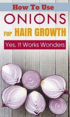 How To Use Onion Juice For Hair Growth - Growing your hair is a task and an excruciatingly long one at that. Fret not, as here is how to use onion juice for hair growth to fulfill your dream. How To Use Onion Juice For Hair Growth - Onion Hair Growth, Hair Growth Oil, Onion Juice For Hair, Scalp Conditions, Oil For Hair Loss, Hair Loss Shampoo, Hair Breakage, Healthy Hair Growth, Healthy Beauty