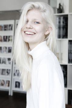 albino woman Hot