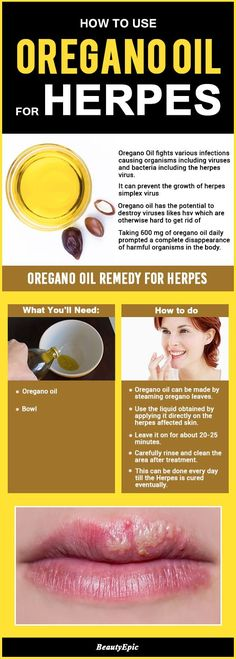 Remedies For Cold Oregano Oil for Herpes – How Effective Is it? - Oregano oil is used for medicinal purposes.It is potential anti-bacterial,anti-fungal and anti-viral agent.Here are best ways to use oregano oil for herpes Essential Oils For Herpes, Essential Oils For Congestion, Antibacterial Essential Oils, Are Essential Oils Safe, Essential Oil Uses, Doterra Essential Oils, Yl Oils, Oregano Oil For Colds, Oregano Oil Benefits