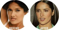 Salma Hayek Nose Job Plastic Surgery Before And After Best Result