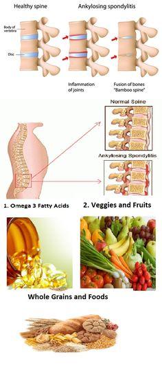 Ankylosing Spondylitis Diet – Everything You Need To Know
