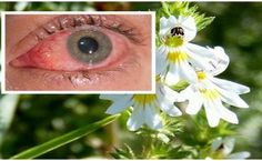 This Herb Improves Eyesight Even in People Older Than 70 Years. Solves Problems With the Eyes, Vision and Eye Pressure (This Herb Improves Eyesight Even in Eye Sight Improvement, Vision Eye, Snoring Solutions, Eyes Problems, Medicinal Herbs, Herbal Plants, Natural Medicine, Herbal Medicine, Problem Solving