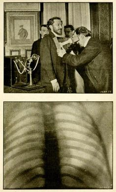 ☤ MD ☞☆☆☆ Top: Screening adult men for tuberculosis with radiography. Bottom: The chest of the man being screened above, clear of tuberculosis or other abscesses. Radiography and the 'X' Rays in Practice and in Theory. Oral Health, Dental Health, Medical Photography, Medical Photos, Human Oddities, How To Prevent Cavities, Best Teeth Whitening, Vintage Medical, Mystery Of History
