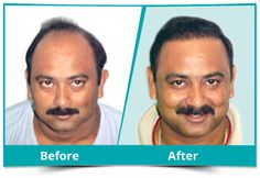 best hair transplant center in Rohtak, Haryana