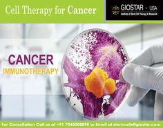#Cancer #Immunotherapy  #Cancer is class of disease characterized by uncontrolled division of cells leading to formation of tumor mass. The tumors may be benign or malignant. Benign tumors do not spread to other parts of body but malignant do. Malignant cells detach from primary tumor and move throughout body using blood or lymphatic stream.    Know more : http://www.giostar.com/cancer/ Email: stemcells@giostar.com