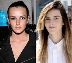 Best of 2011: Plastic Surgeries of the Year: Ali Lohan