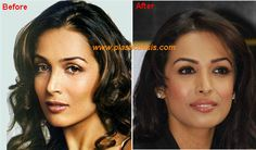 Malaika-Arora-Plastic-Surgery-Before-and-After.jpg