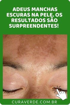 Discover these aesthetic natural makeup Image# 9433 Spots On Legs, Brown Spots On Skin, Skin Spots, Beauty Care, Beauty Hacks, Beauty Skin, Uses For Vicks, Remover Manchas, Hair Scrub