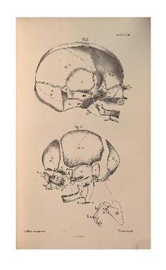 Human osteology: comprising a description of th...