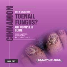 The blog post with complete instructions for the toenail fungus treatment with Ceylon Cinnamon