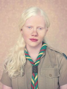 Albinos is a beautiful photo essay of people with albinism started in 2009 by Brazilian photographer Gustavo Lacerda. Using muted colors and soft lights to stage the portraits, Lacerda is able to p. Modelo Albino, Pretty People, Beautiful People, Beautiful Women, Albino Girl, Albino Model, Blog Art, Portraits, Photo Series