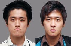 Male plastic surgery before and after