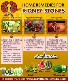 remedies for kidney stones from Healthy Nutrition, Natural Cures & Natural Beauty Tips Top 10 Home Remedies, Natural Home Remedies, Herbal Remedies, Health Remedies, Holistic Remedies, Natural Kidney Stone Remedy, Remedies For Kidney Infection, Kidney Detox Cleanse, Kidney Health