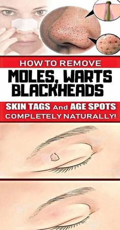 Find out how to Remove Warts Naturally #NaturalHairProducts #HowToRemoveWartsFast #DarkBrownMolesOnSkin #EasyWayToRemoveWarts #WartsOnHands Get Rid Of Warts, Get Rid Of Blackheads, Remove Warts, Warts On Hands, Warts On Face, How Do You Remove, Skin Moles, Mole Removal, Skin Growths