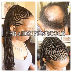 14 Extraordinary Alopecia Camouflage Cornrows By Braids By Necole - Black Hair Information If you liked this pin, click now for more details. Braids For Thin Hair, Black Girl Braids, Girls Braids, Box Braids, Braids Cornrows, Nice Braids, Cornrow Ponytail, Plaits, Haircut Styles For Women