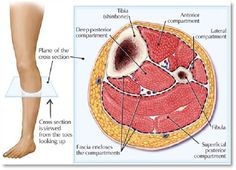 Compartment Syndrome: Swelling out of control Nursing Iv, Nursing Board, Medical Surgical Nursing, Nursing Notes, Exercise Physiology, Anatomy And Physiology, Compartments Of The Leg, Compartment Syndrome, Medical Mnemonics