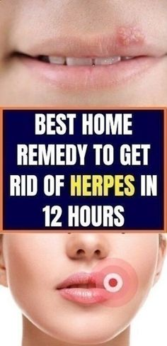 Besides the unpleasant look, the herpes can be painful, and the healing very difficult one. There are a lot of medicines and ointments . Home Remedies For Fever, Natural Home Remedies, Natural Healing, Herpes Remedies, Health Remedies, Healthy Beauty, Health And Beauty, Healthy Food, Eating Healthy